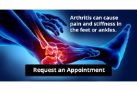 Arthritis Can Cause Pain in the Feet and Ankles