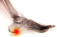Possible Causes of Heel Spurs