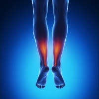 Ways to Help Prevent an Achilles Tendon Injury