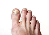 What Is The Medical Name For Toenail Fungus?