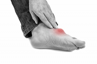 Gout Can Produce Extreme Pain