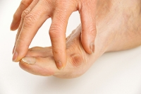 Yoga May Help to Prevent Bunion Pain